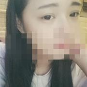 韩式三点双眼皮,已恢复成自然了