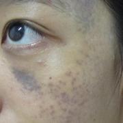 第一次治疗太田痣,颜色没那么深的地方,还是有所减淡的