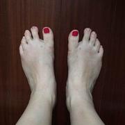 我的矫正大脚骨的抗战经历