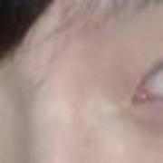 记录我的激光去眼袋全程,姐妹们自己看吧!