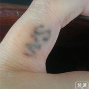 偷偷的把手上纹身用激光洗啦!!