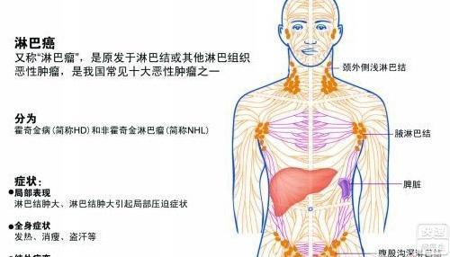 颈部淋巴癌的症状有哪些