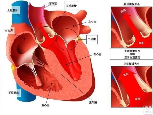 风湿性心脏病有哪些症状