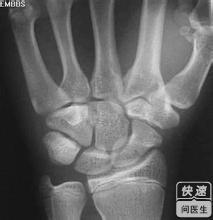 手腕骨折后的症状有哪些图片
