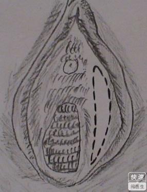 前庭大腺�yࣹ�9f�x�_前庭大腺囊肿图片是什么样的