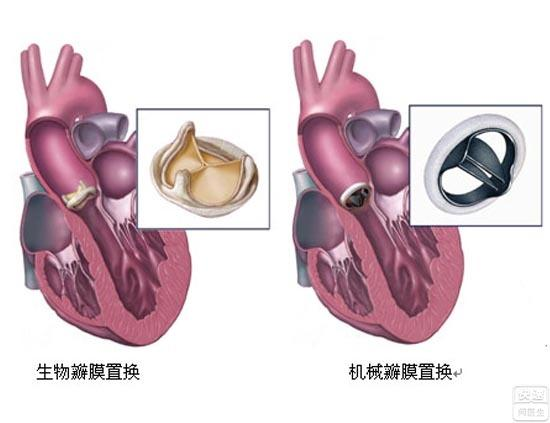 瓣膜置换术需要多少钱