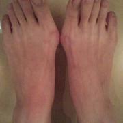 痛下决心的做了大脚骨术