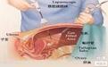 输卵管造影什么时候做好 术前一定要做好检查