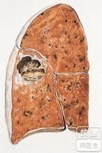 肺脓肿复发该怎么治疗