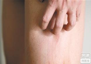 下肢静脉曲张引起发痒怎么办