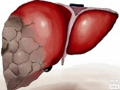 早期肝硬化怎么治疗