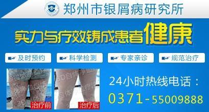 郑州市银屑病医院