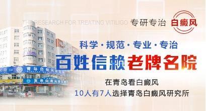 青岛白癜风研究所老牌名院
