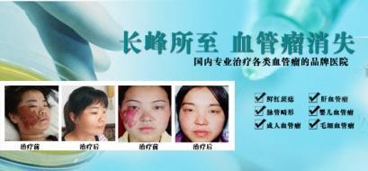 郑州长峰医院专业治疗各种血管瘤胎记