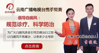 云南广播电视台携手昆明复美倡导白癜风