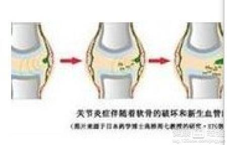 慢性风湿关节炎图片2