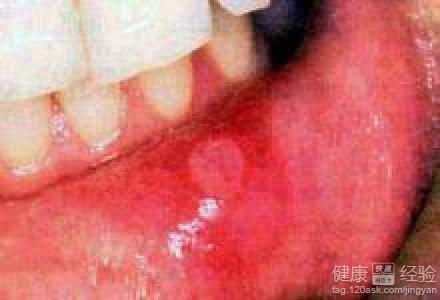 老人口腔溃疡的治疗_治疗口腔溃疡的草药