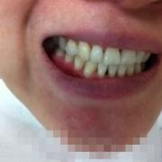 做了隐形矫正一年多了,现在牙齿整齐多了!分享一下!