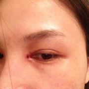 眼角加双眼皮手术恢复中~~~~~~